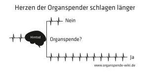 Schaubild von Pater Schäfer zur Organspende